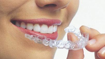 Ortodoncia invisalign Albacete